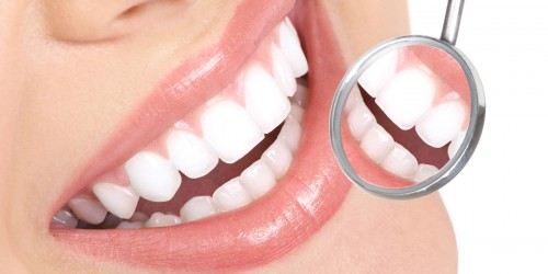 Dental-Implant-Process